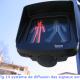 2007 Signaux malvoyants